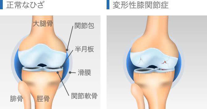 正常な膝と変形性膝関節症との比較