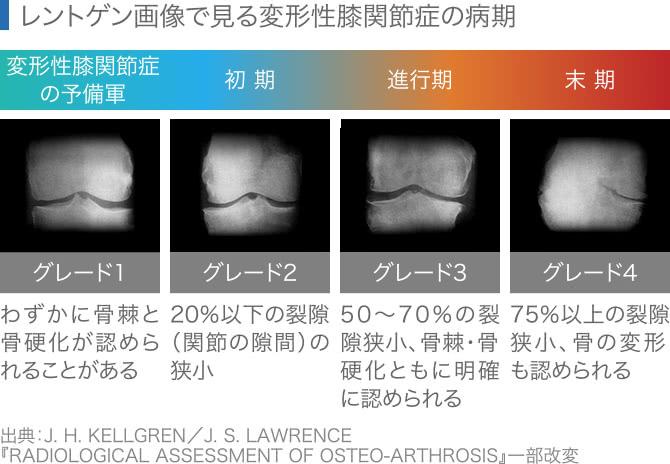 レントゲン画像による変形性膝関節症のグレード指標