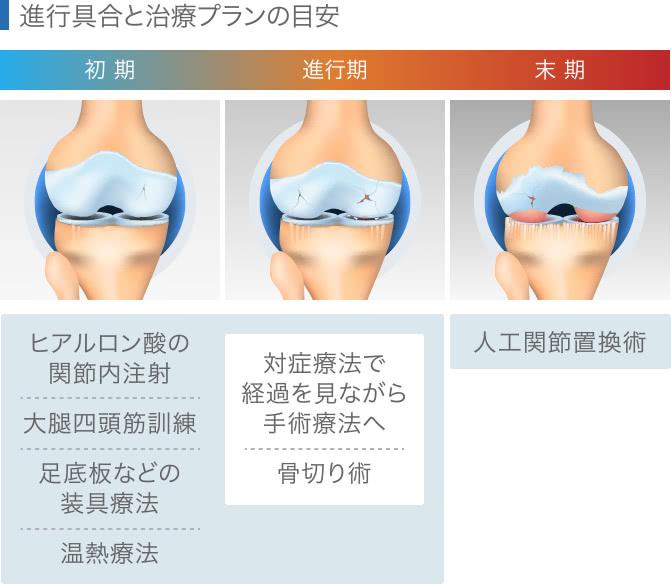変形性膝関節症の進行と治療プラン