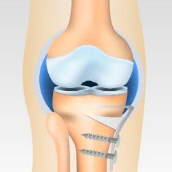 変形性膝関節症の骨切術