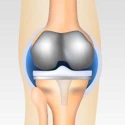 変形性膝関節症の人工関節置換術