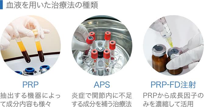 血液を用いた治療法の種類