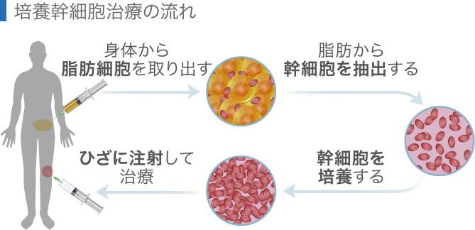 培養幹細胞治療の流れ
