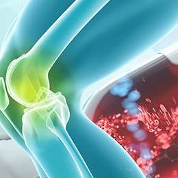 ひざの痛みを和らげるPRP-FD注射