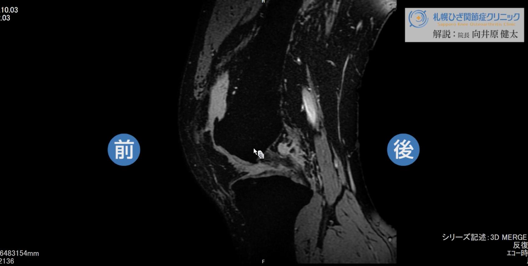 【膝MRI】50代後半|変形性膝関節症の症例を解説します